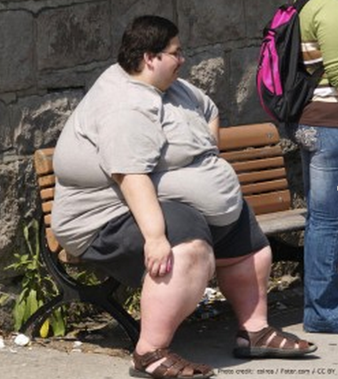operated telling obese people - 612×700